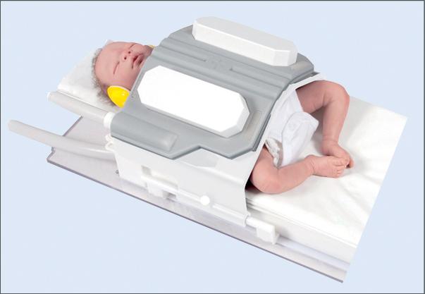 МРТ месячному ребенку