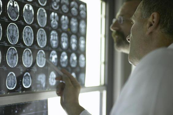 Расшифровка КТ головного мозга