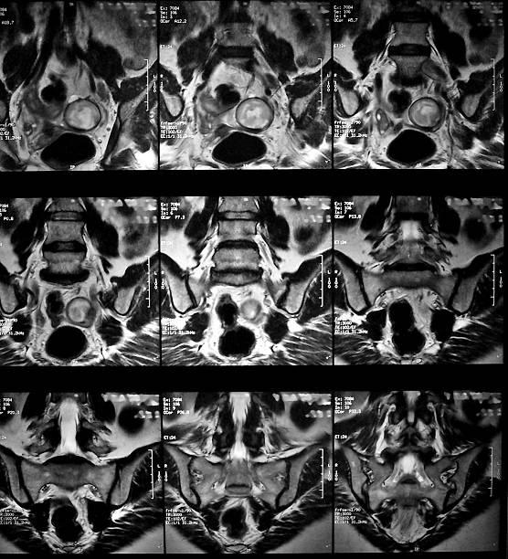 Снимки МРТ малого таза