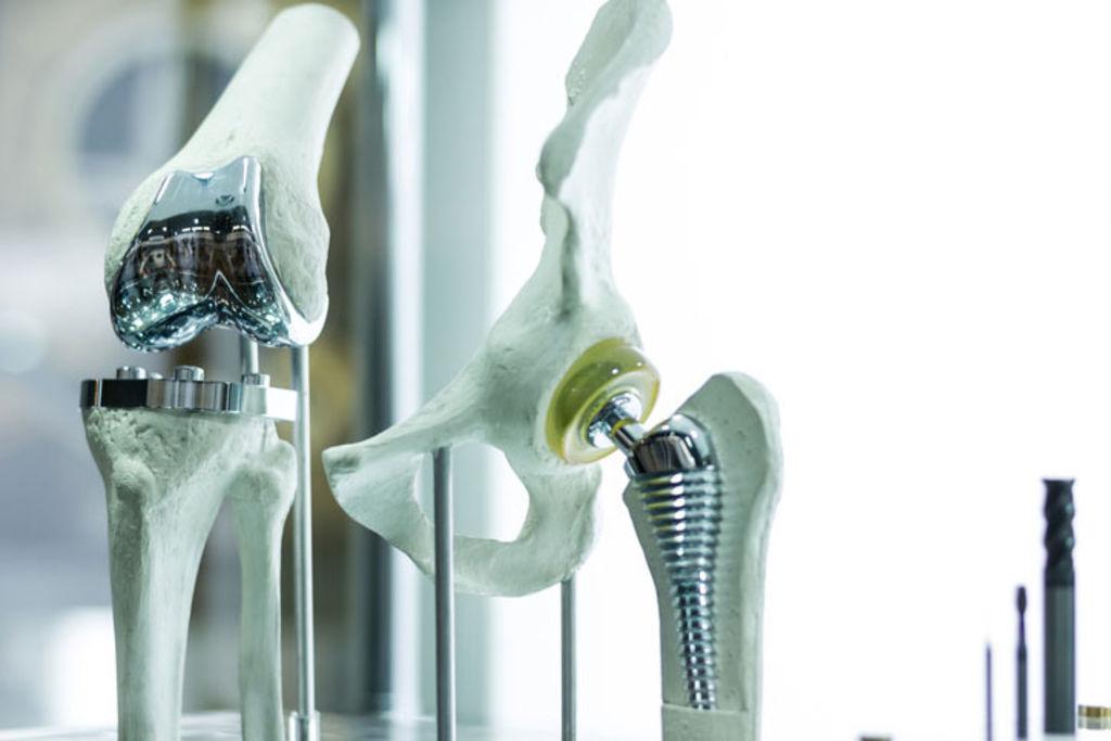 МРТ при металлических штифтах