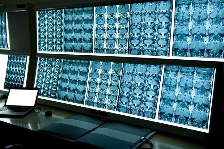 Кто проводит МРТ