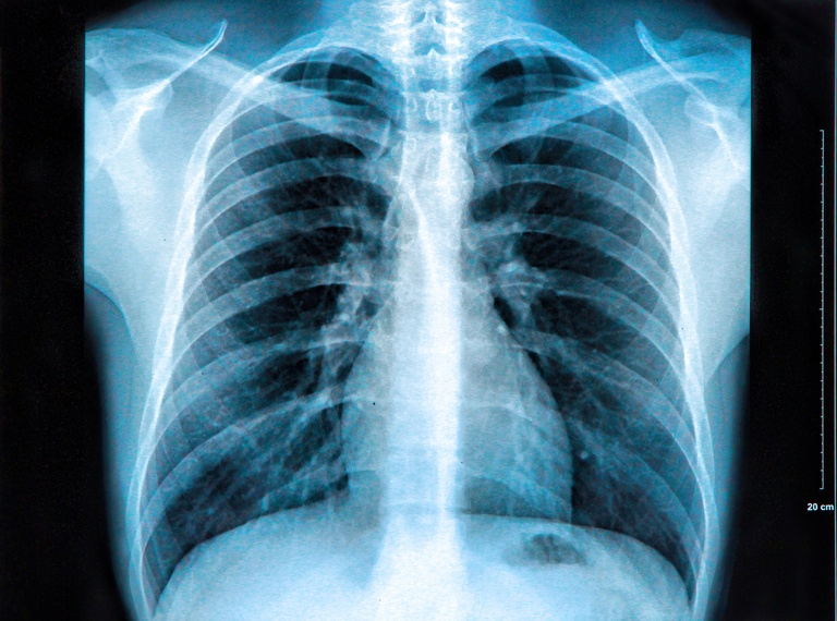 Рентген после МРТ