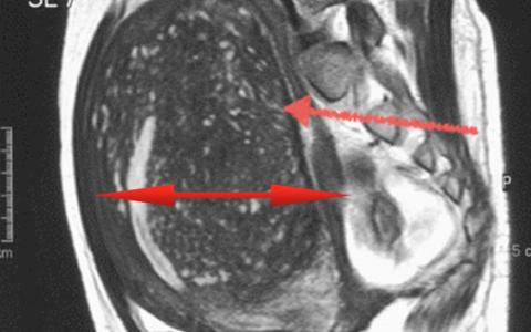 Эндометриоз на МРТ
