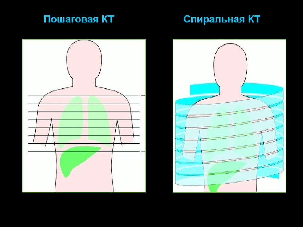 Разница между КТ и МСКТ