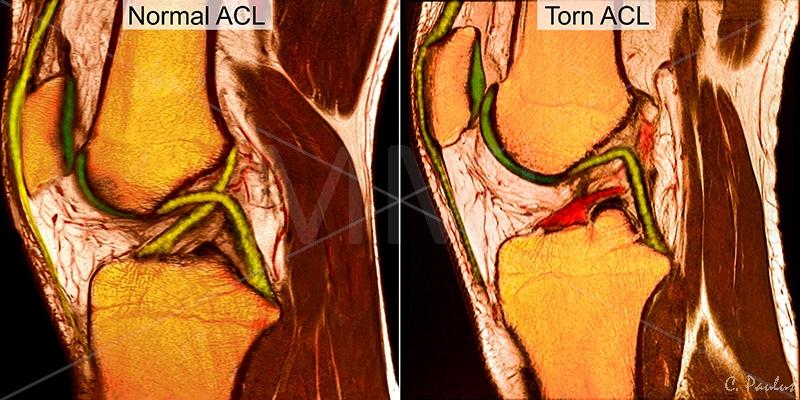 МРТ при разрыве крестообразной связки
