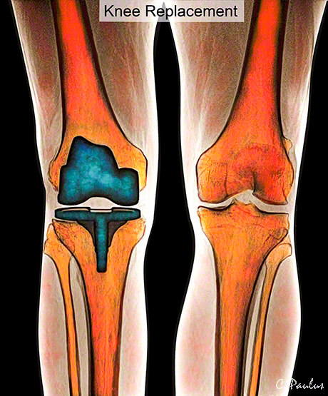 МРТ колена сколько длится