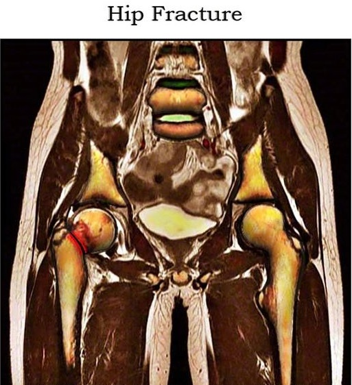 МРТ тазобедренных суставов