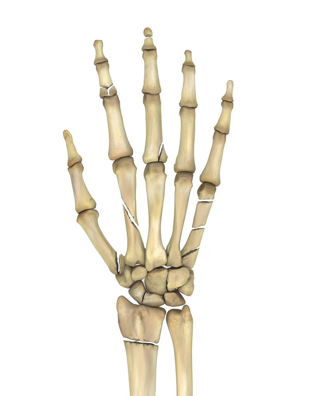 МРТ или КТ лучезапястных суставов
