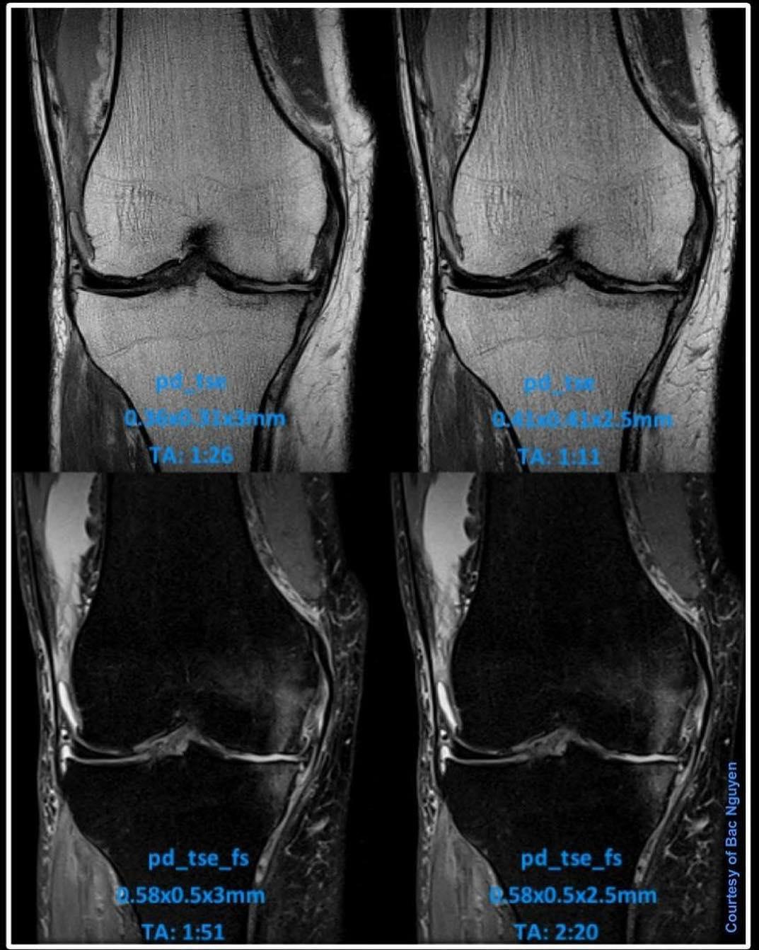 МРТ колена в норме