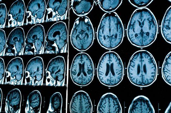 Сколько делают МРТ, годны снимки, как прочитать с
