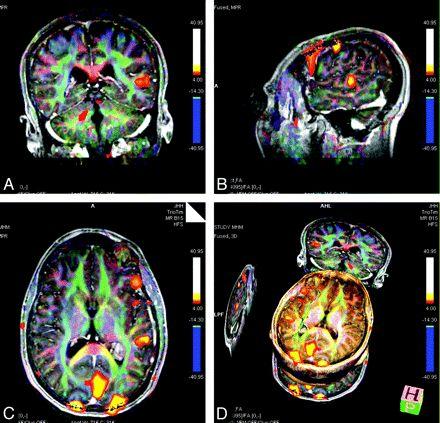 Специальные методы МРТ мозга