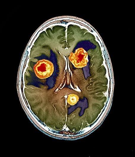 Рак мозга на МРТ