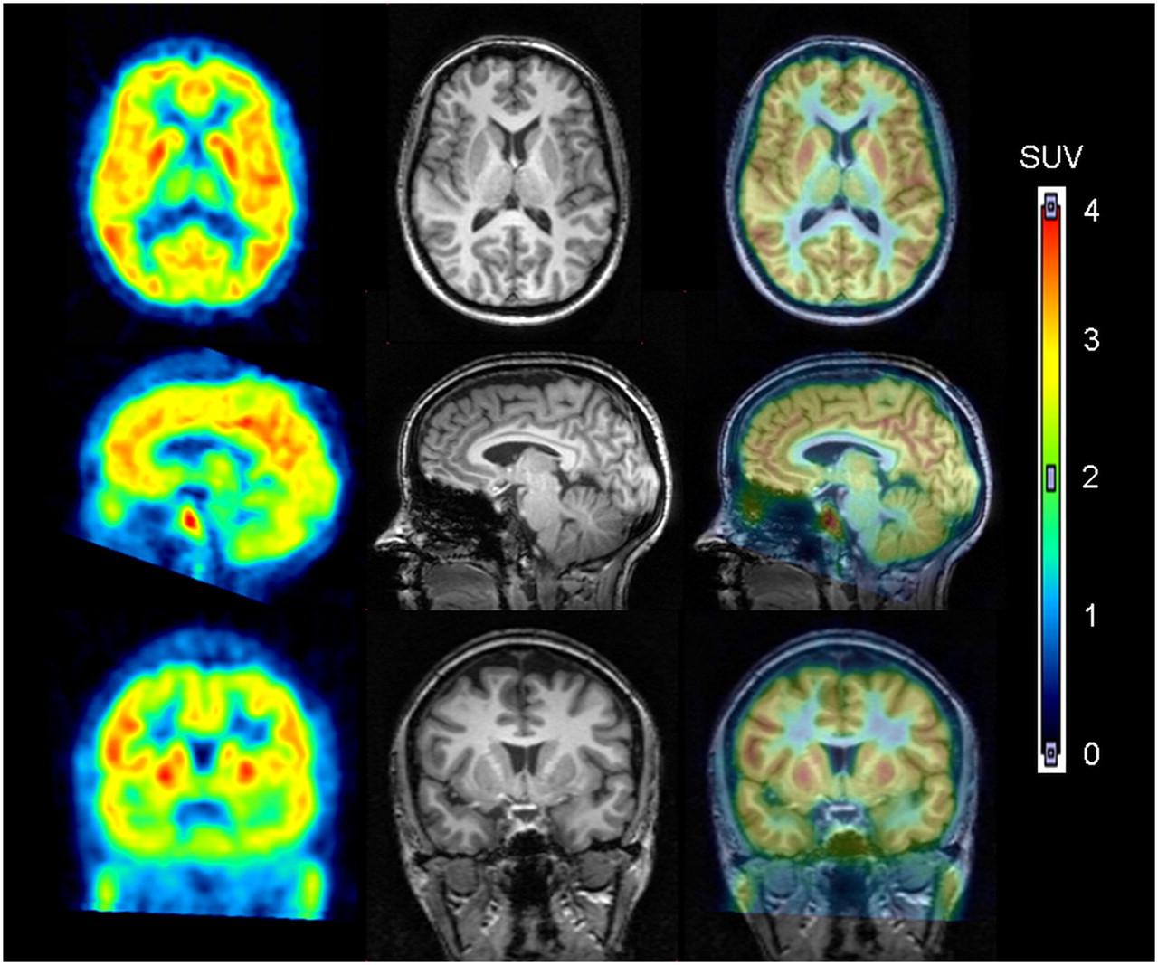 ПЭТ головного мозга