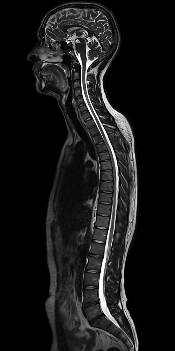 МРТ позвоночника сколько длится