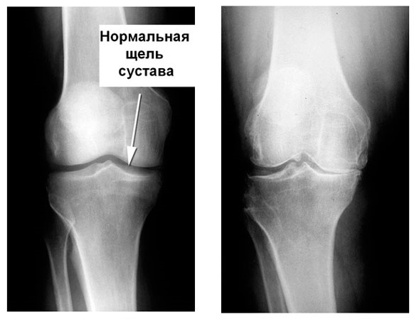 Болезнь Гоффа рентген