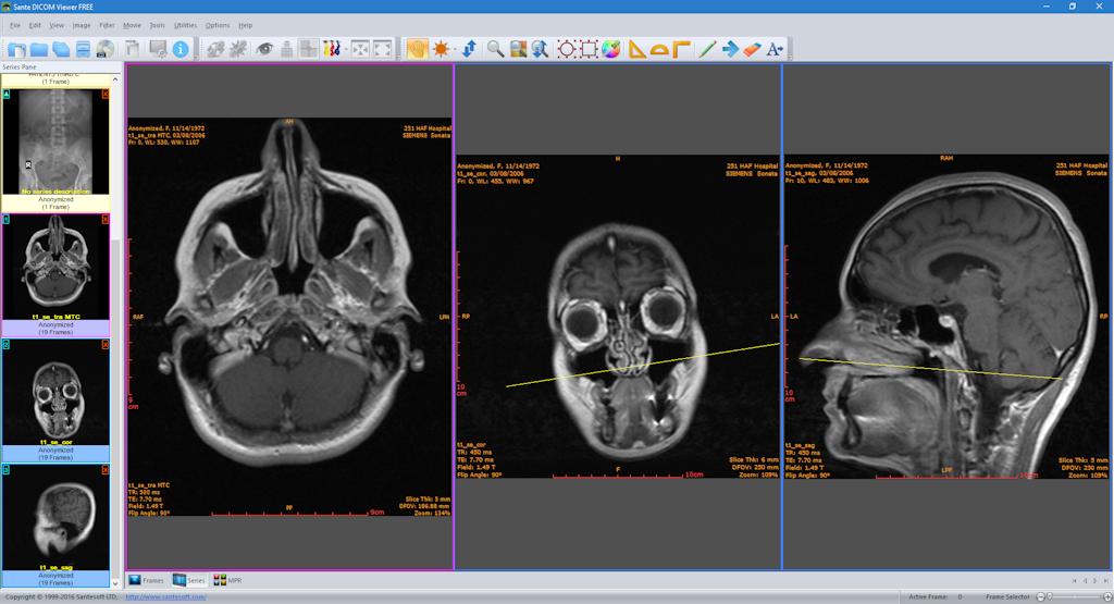 Ка просмотреть снимки МРТ