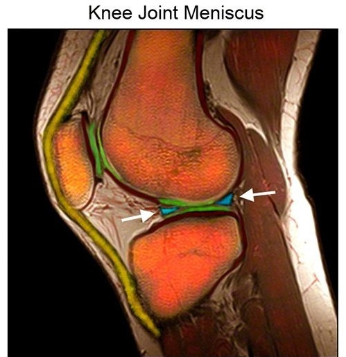 Виды МРТ суставов: коленного, локтевого, лучезапяс