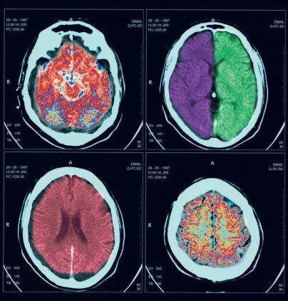 Заболевания на магнитно-резонансных томограммах