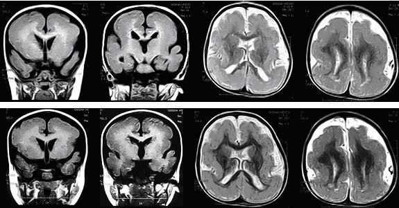 Что покажет МРТ при ДЦП