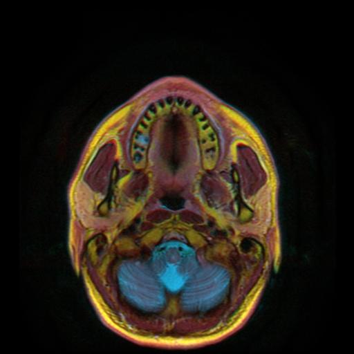 МРТ нижней челюсти