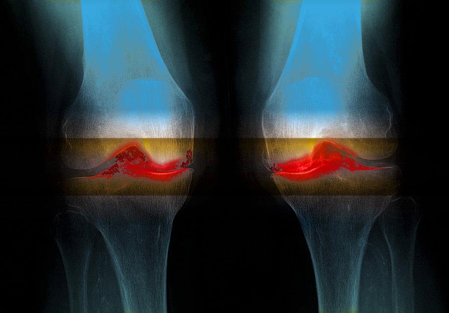 МРТ колена после травмы