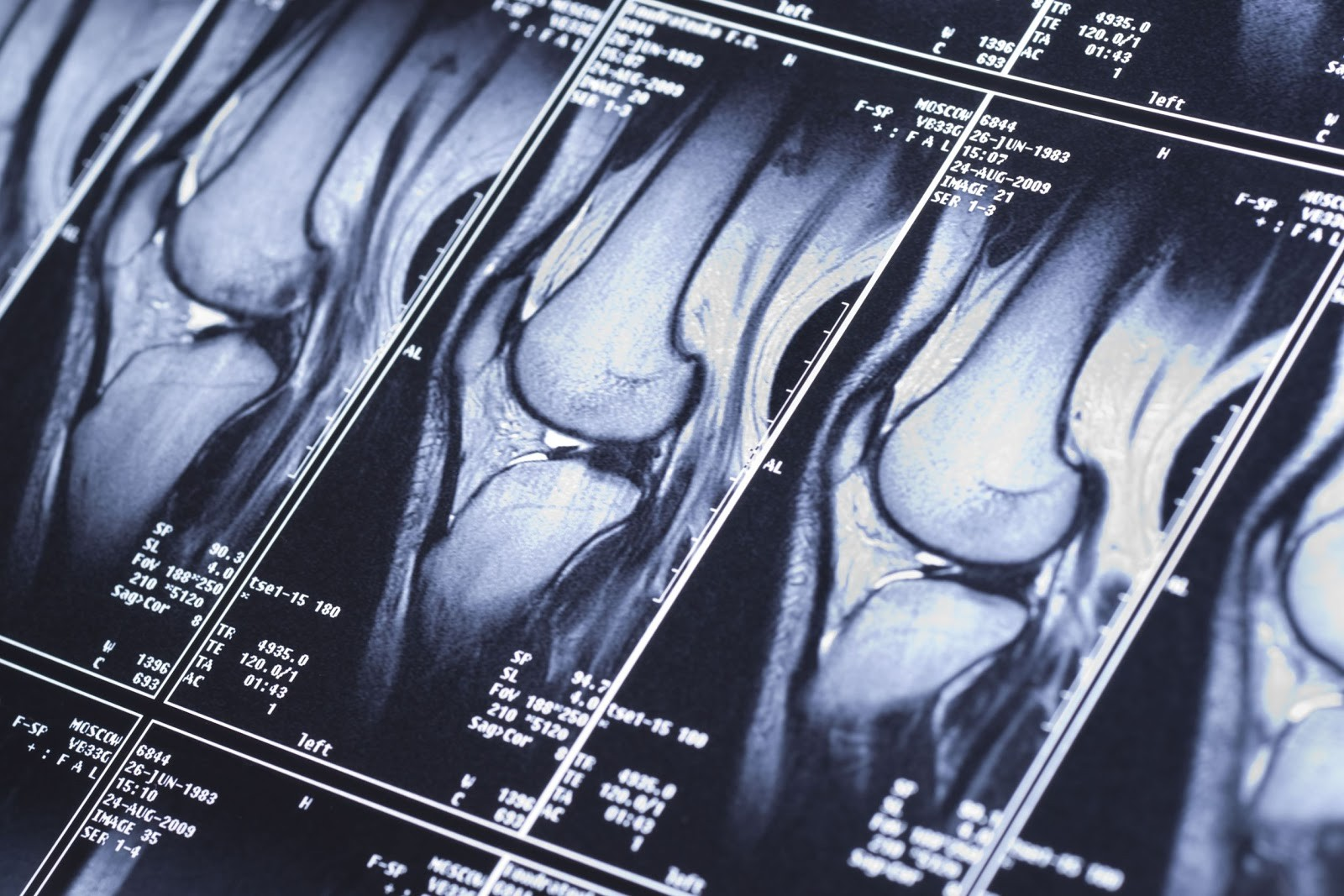 Томография суставов и конечностей