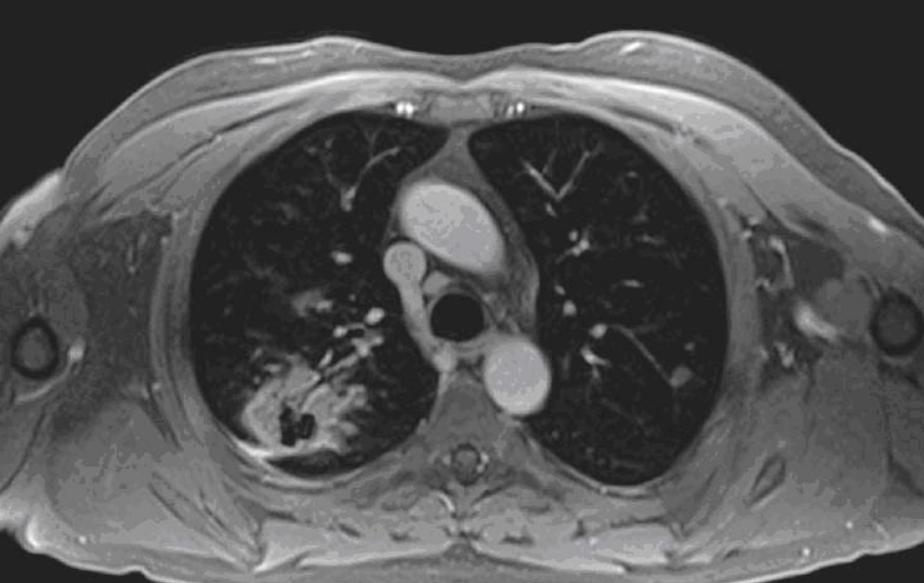 МРТ легких