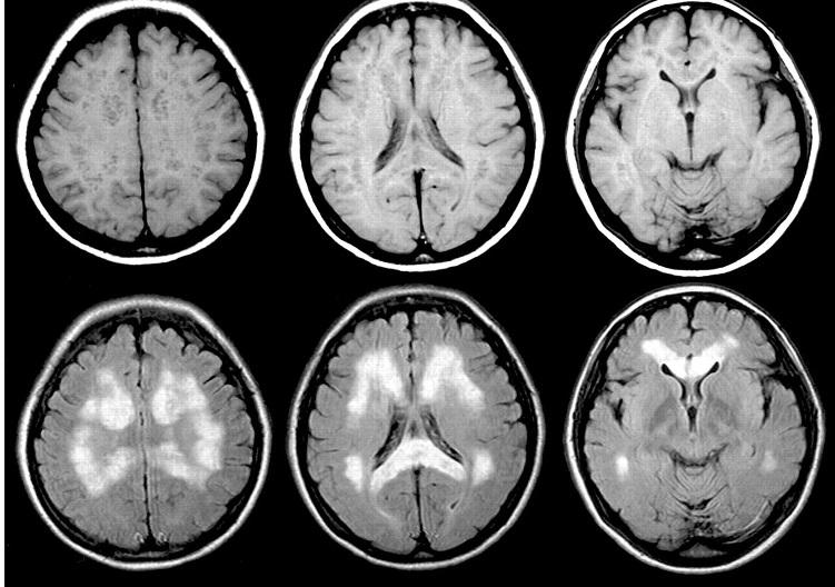 МРТ болезнь Паркинсона