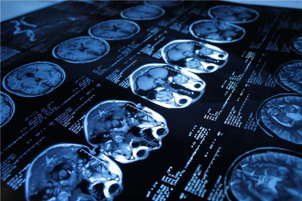 Обзор различных видов томографии