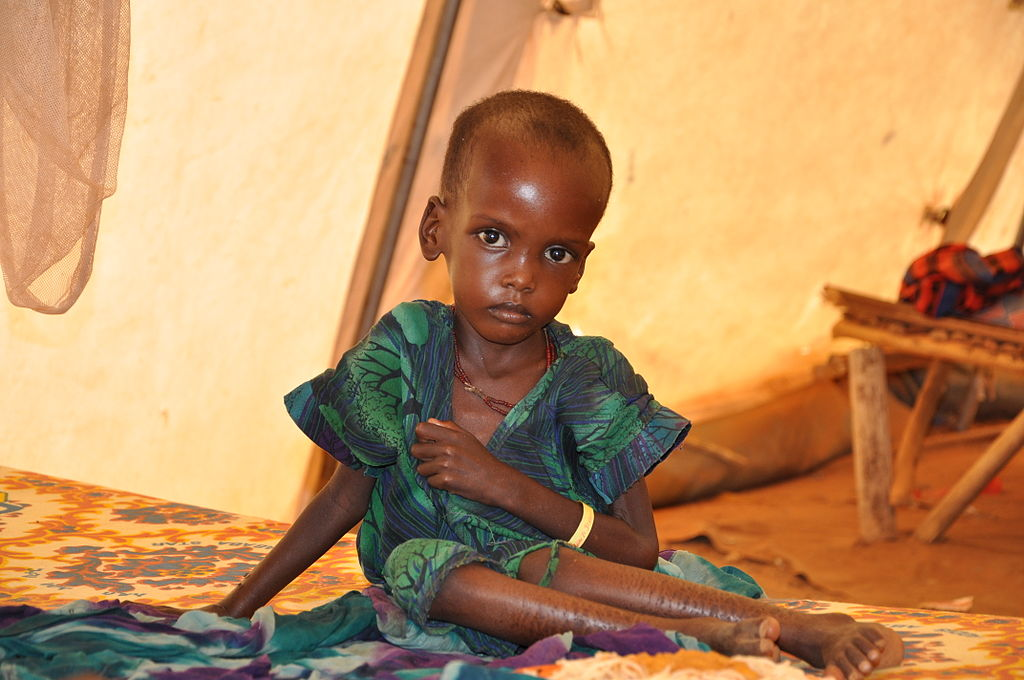 1024px-a_malnourished_child_in_an_msf_treatment_tent_in_dolo_ado.jpg