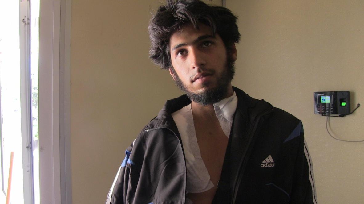 Zacharia, gewonde strijder tegen het regime van Assad. Foto: Hans Jaap Melissen