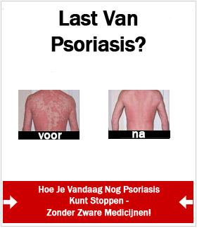 psoriasis programma