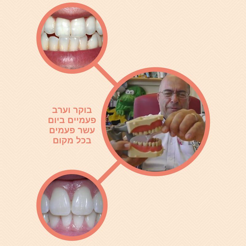 איך נכון לצחצח שיניים. מל בתבל