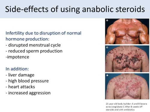 The Most Common Mistakes People Make With aas steroids
