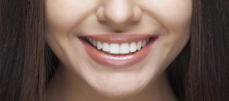 Debes cuidar al máximo tu salud dental
