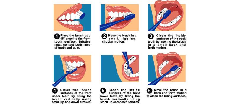 Aprende a lavarte los dientes con ortodoncia