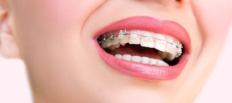 Puedes encontrarte guapa aunque tengas ortodoncia