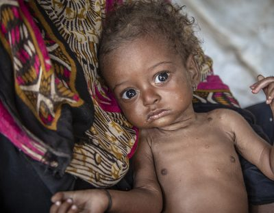 Nälkiintynyt Lapsi