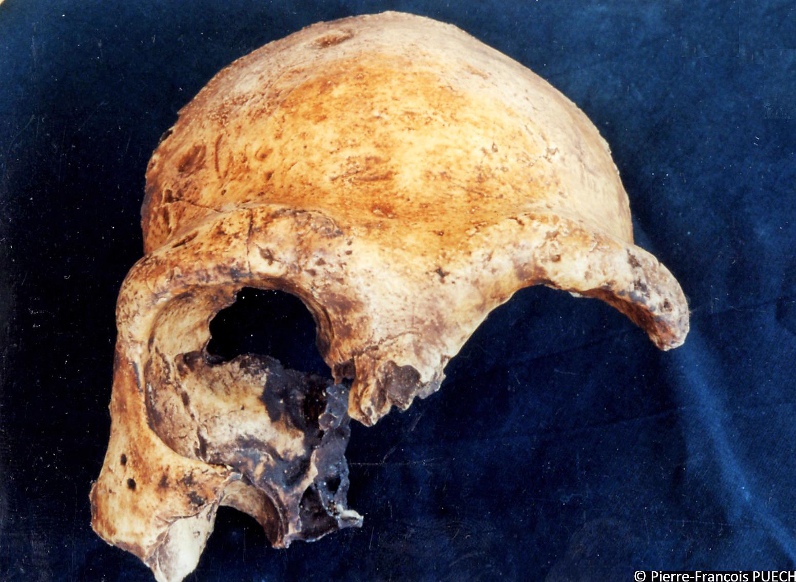 The Zuttiyeh specimen from Israel, Galilee Skull frontal bone