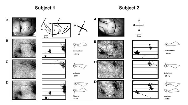 Cat SI and SII optical responses to 25 Hz vibrotactile stimulation