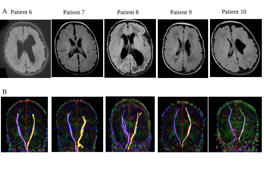 Neonatal diffusion tensor brain imaging predicts later motor outcome ...