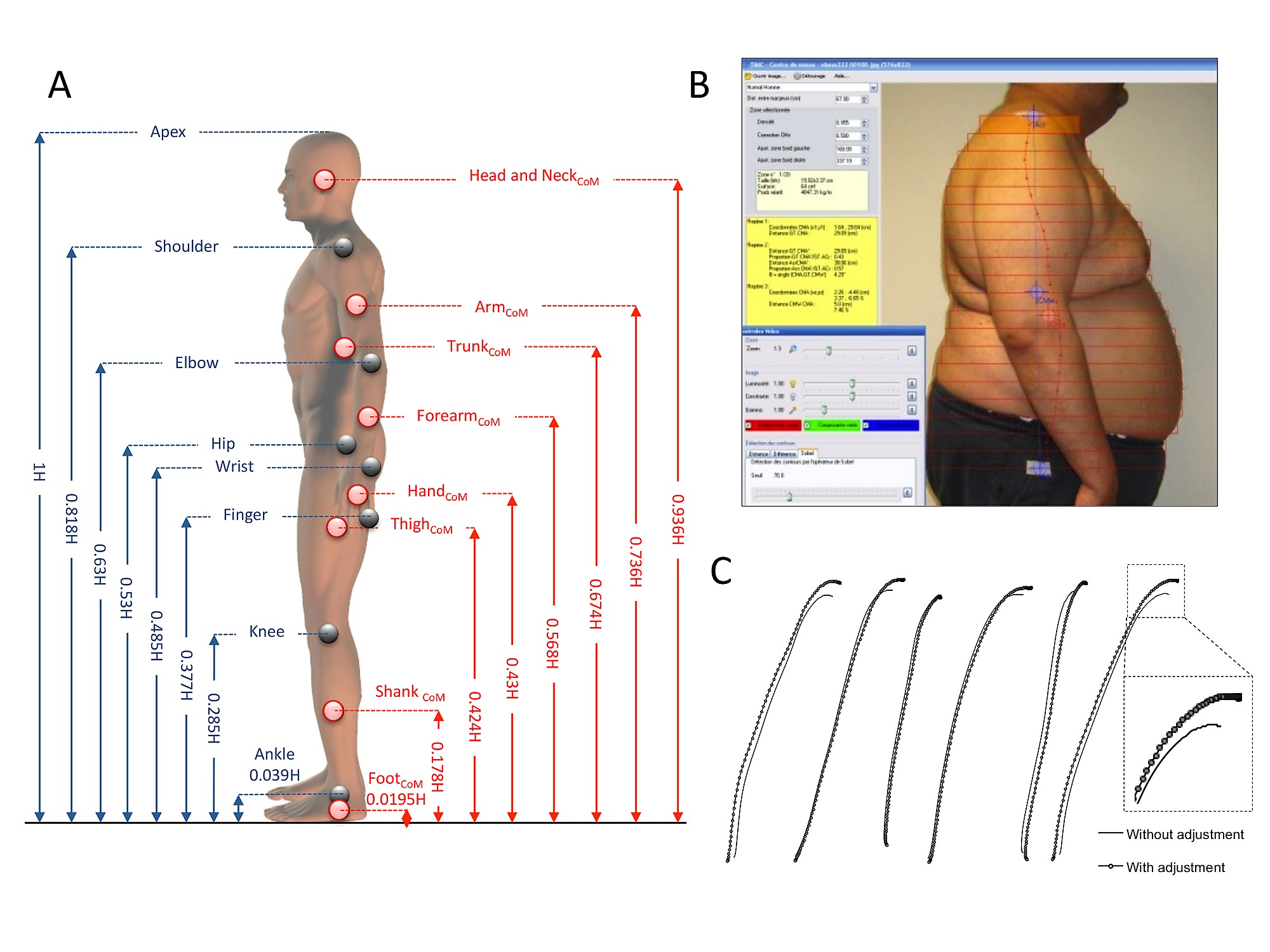 Origins Of Balance Disorders During A Daily Living Movement In Obese