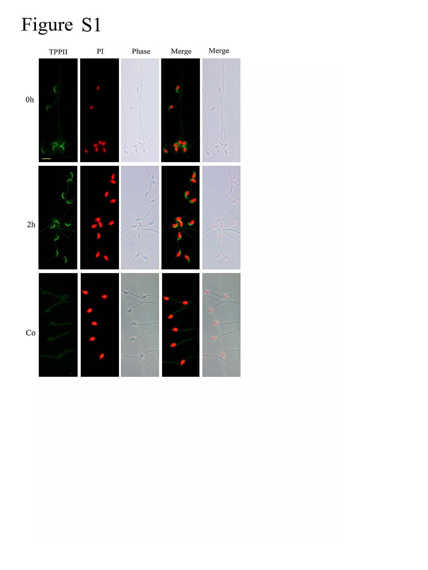 Tripeptidyl Peptidase Ii Regulates Sperm Function By Modulating