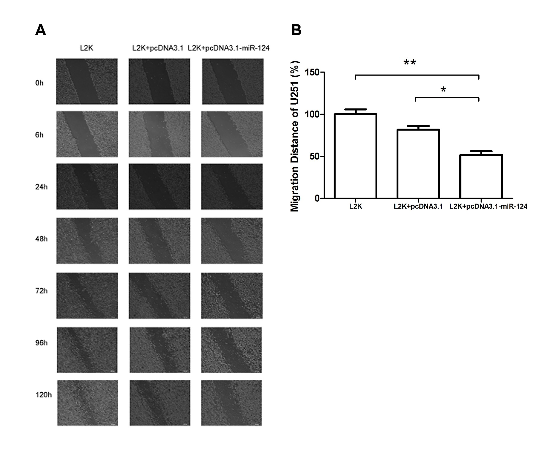 microRNA 124 Inhibits Migration and Invasion by Down Regulating