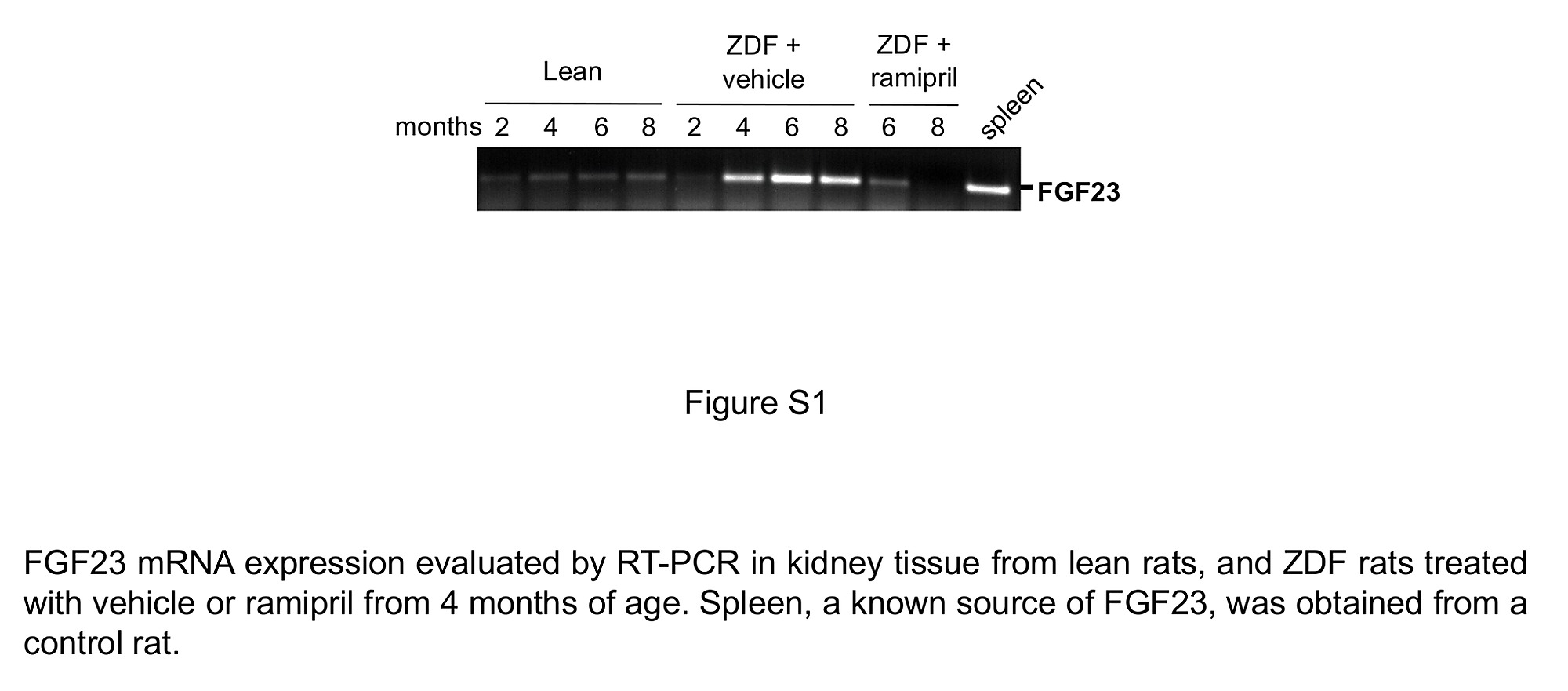 renal expression of fgf23 in progressive renal disease of diabetes