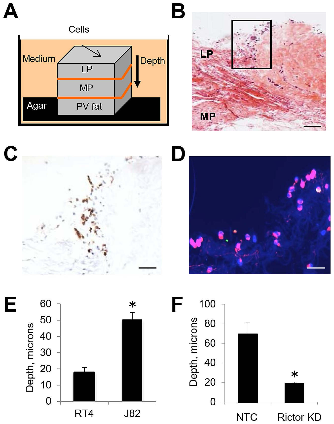 mtorc2 regulates invasion of bladder cancer cells into the human bladder  wall