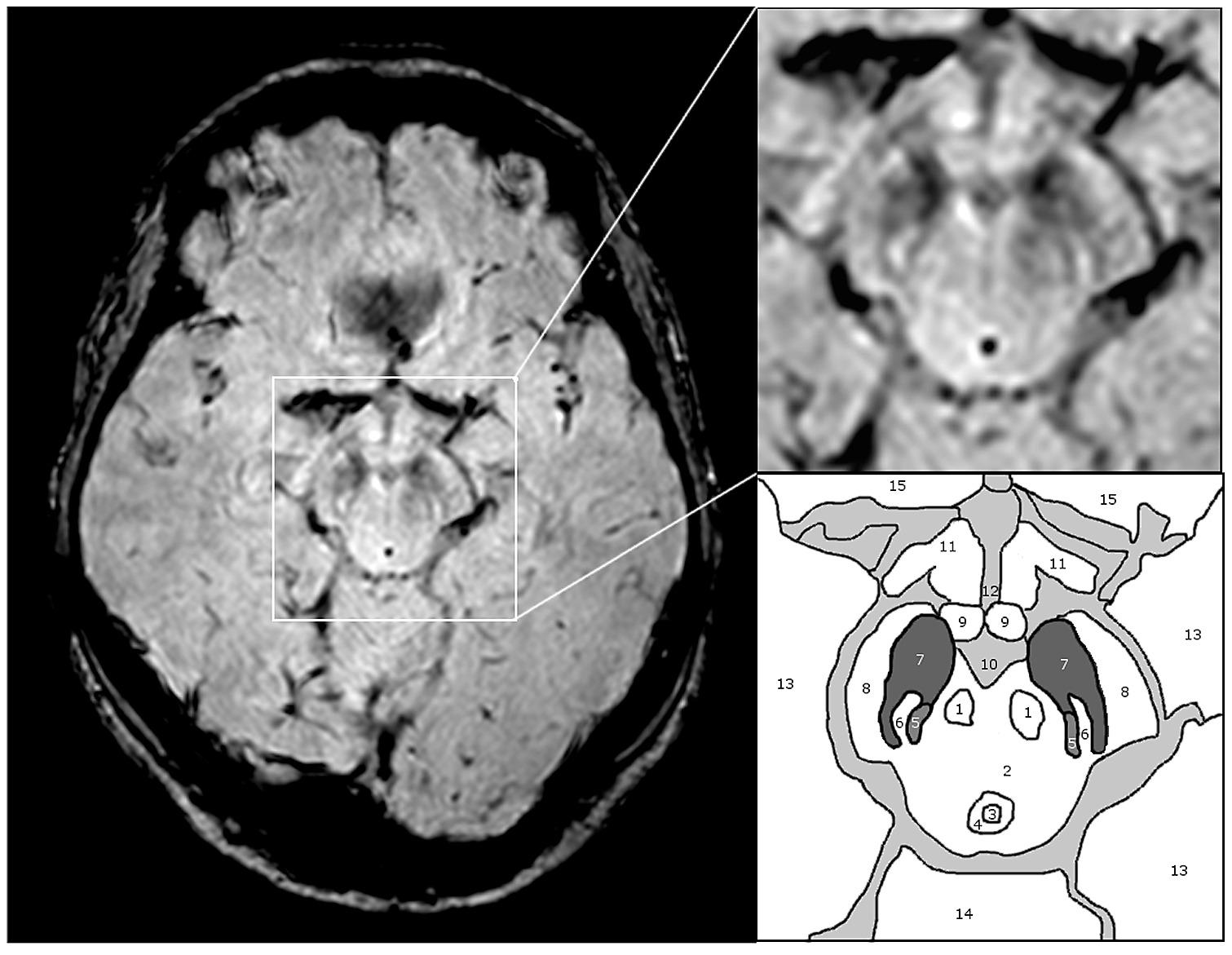 Substantia nigra anatomy on 3T - SWI – MRI.