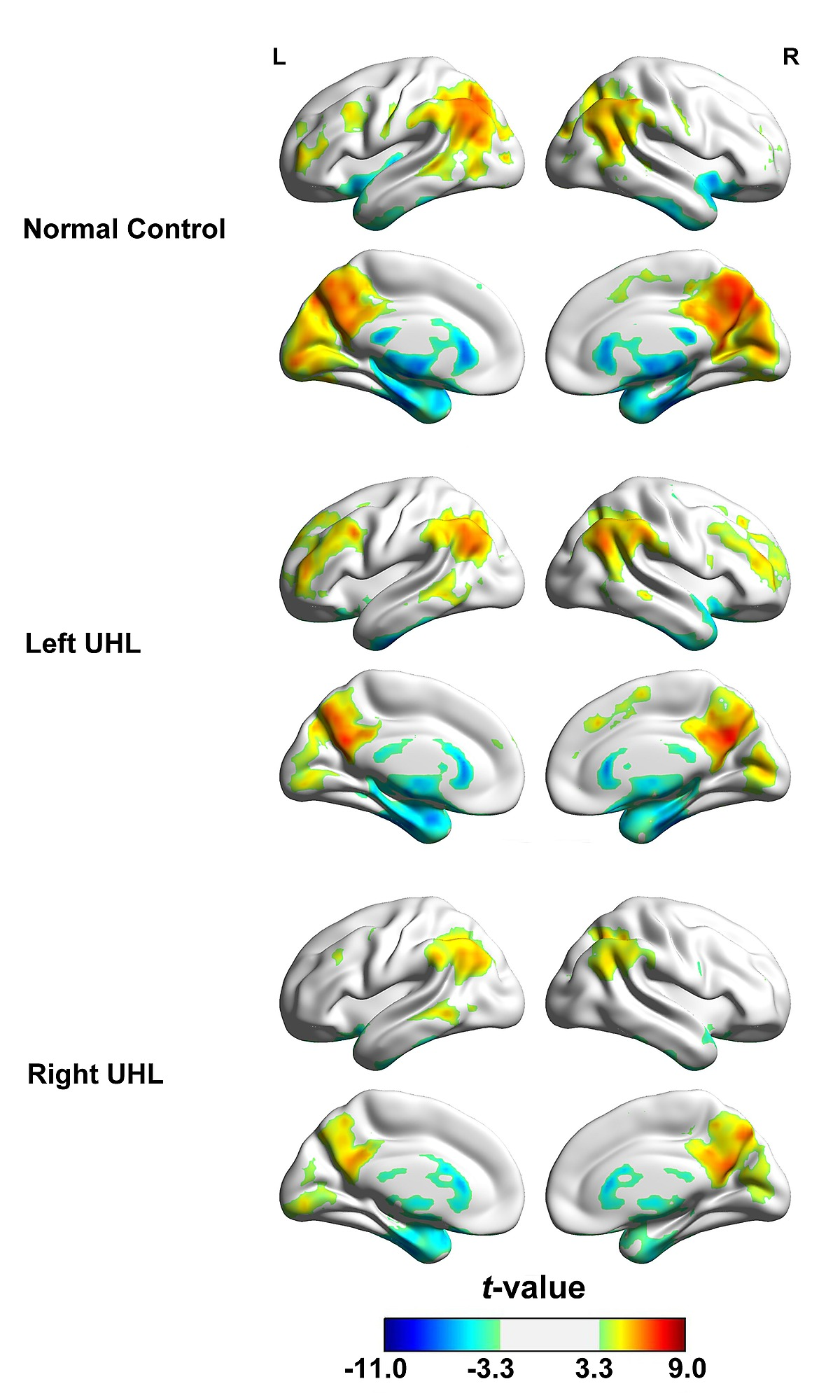 Altered Regional And Circuit Resting State Activity Associated With Between Unilateral Circuits Bilateral Its Functions Figshare