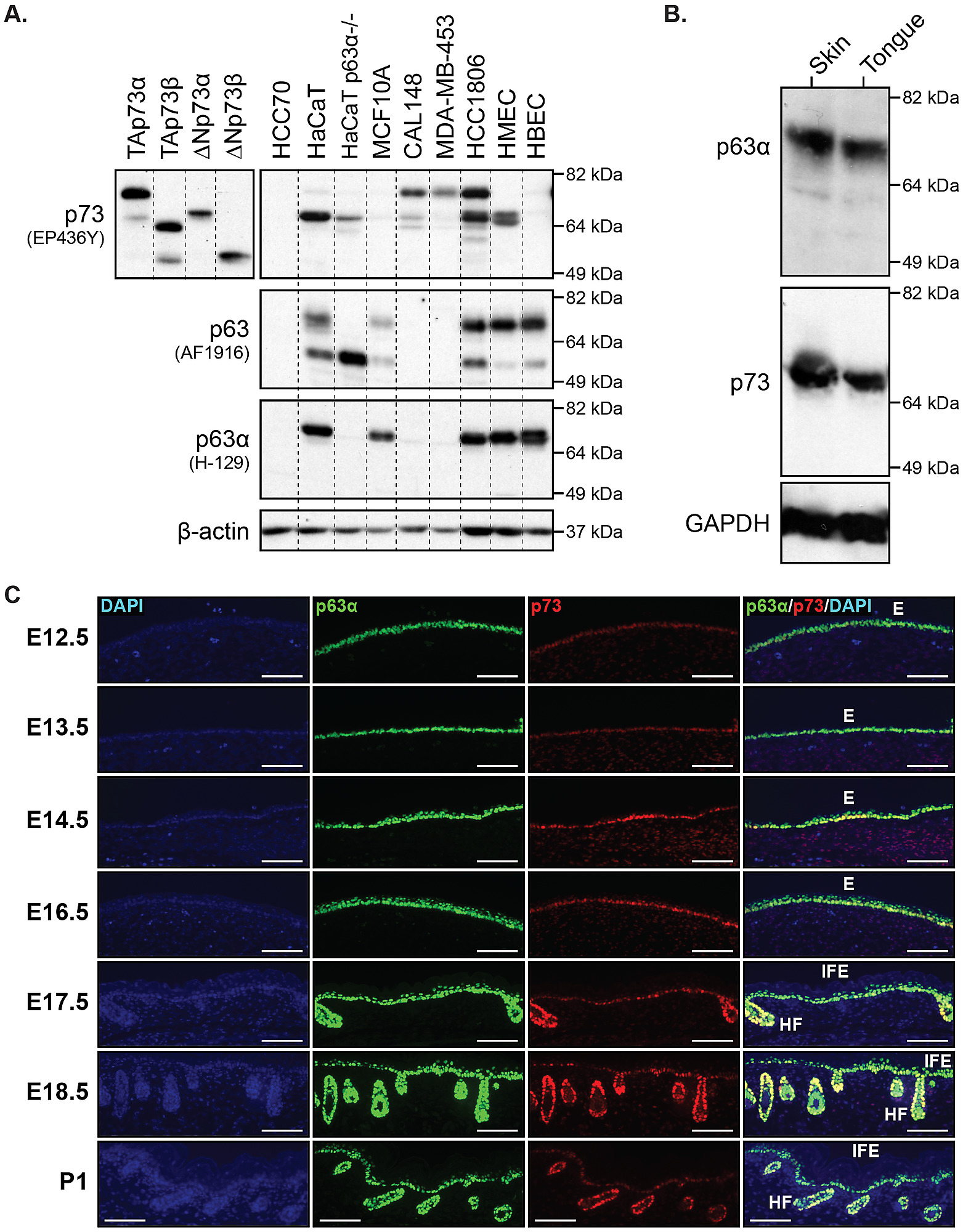 p73 regulates epidermal wound healing and induced