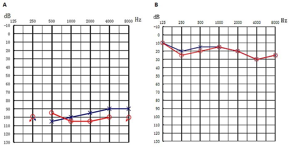 Audiogram showed bilateral profound sensorineural hearing